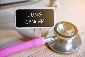 Myths Correlated To Lung Cancer Screening